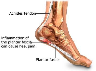 osteopathy and Plantar Fascitis